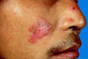 狼疮性肾炎治疗方法_红斑狼疮的早期症状都有哪些(图)_兰州北大皮肤病专科门诊部